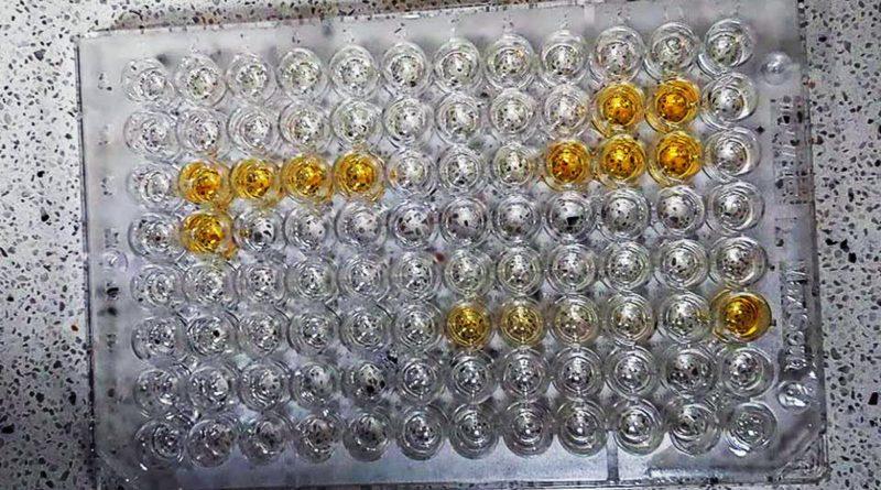testy na koronawirusa fot. UAM